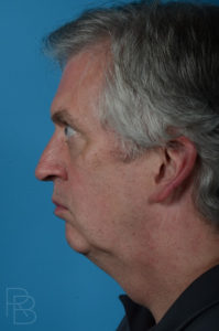 Dr. Brobst, Plano and McKinney, TX Before Male Facelift/Necklift Brobst Facial Plastic Surgery