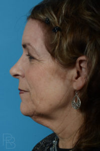 Dr. Brobst, Plano and McKinney, TX Before Facelift/Necklift Brobst Facial Plastic Surgery