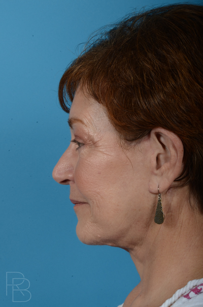 Dr. Brobst, Plano and McKinney, TX After Facelift/Necklift Brobst Facial Plastic Surgery