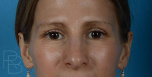Dr. Brobst, Plano and McKinney, TX After Upper Blepharoplasty Brobst Facial Plastic Surgery