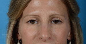 Dr. Brobst, Plano and McKinney, TX Before Upper Blepharoplasty Brobst Facial Plastic Surgery