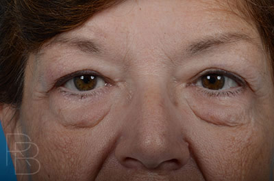 Dr. Brobst, Plano and McKinney, TX Before Upper and Lower Blepharoplasty Brobst Facial Plastic Surgery