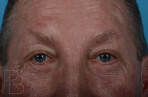 Dr. Brobst, Plano and McKinney, TX After Upper and Lower Eyelid Blepharoplasty Brobst Facial Plastic Surgery