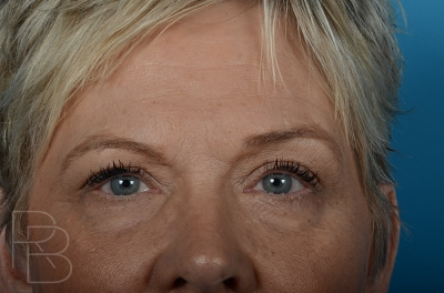 Dr. Brobst, Plano and McKinney, TX Before Upper and Lower Eyelid Blepharoplasty Brobst Facial Plastic Surgery