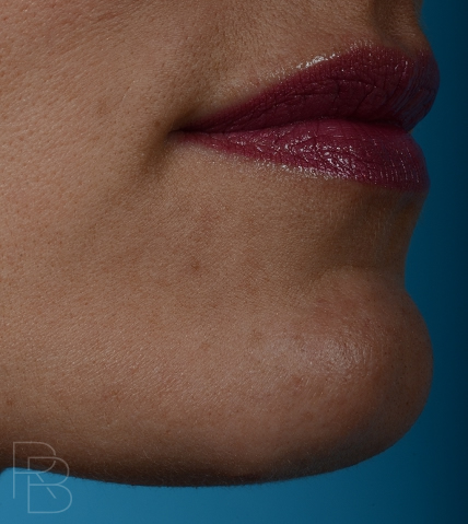 Dr. Brobst, Plano and McKinney, TX After Lesion/Mole Removal - Brobst Facial Plastic Surgery