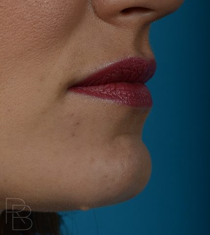 Dr. Brobst, Plano and McKinney, TX Before Lesion/Mole Removal - Brobst Facial Plastic Surgery