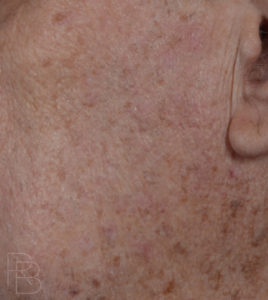 Dr. Brobst, Plano and McKinney, TX After Removal of Seborrheic Keratosis: Mole/Lesion Removal - Brobst Facial Plastic Surgery