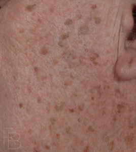 Dr. Brobst, Plano and McKinney, TX Before Removal of Seborrheic Keratosis: Mole/Lesion Removal - Brobst Facial Plastic Surgery