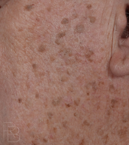 Lesion Removal Dr Brobst Facial Plastic