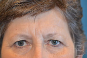 Dr. Brobst, Plano and McKinney, TX; Before Endoscopic Browlift/Forehead Lift Brobst Facial Plastic Surgery