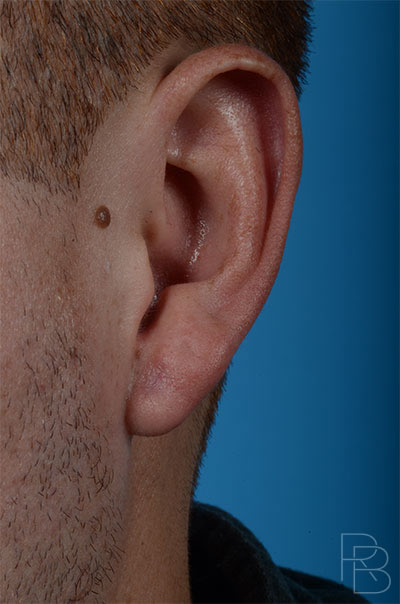 Dr. Brobst, Plano and McKinney, TX After Earlobe Repair and Gauge Repair Brobst Facial Plastic Surgery