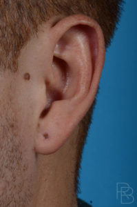 Dr. Brobst, Plano and McKinney, TX Before Earlobe Repair and Gauge Repair Brobst Facial Plastic Surgery
