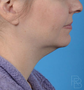 Dr. Brobst, Plano and McKinney, TX; Before Neck Liposuction Brobst Facial Plastic Surgery