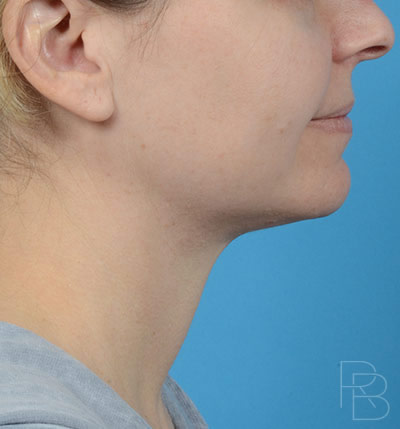 Dr. Brobst, Plano and McKinney, TX; After Neck Liposuction Brobst Facial Plastic Surgery