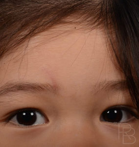 Dr. Brobst, Plano and McKinney, TX; After Brow Laceration Repair; Trauma: Child; Brobst Facial Plastic Surgery