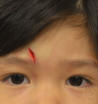 Dr. Brobst, Plano and McKinney, TX; Before Brow Laceration Repair; Trauma: Child; Brobst Facial Plastic Surgery