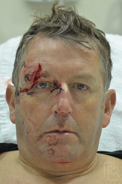 Dr. Brobst, Plano and McKinney, TX; Before Facial Trauma; Brow Laceration: Adult; Brobst Facial Plastic Surgery