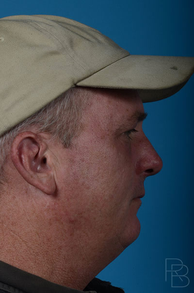 Dr. Brobst, Plano and McKinney, TX; After Ear Trauma: Adult; Brobst Facial Plastic Surgery