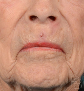Dr. Brobst, Plano and McKinney, TX; After Lip Trauma: Adult; Brobst Facial Plastic Surgery