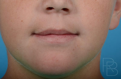 Dr. Brobst, Plano and McKinney, TX; After Lip Trauma: Child; Brobst Facial Plastic Surgery