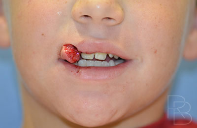 Dr. Brobst, Plano and McKinney, TX; Before Lip Trauma: Child; Brobst Facial Plastic Surgery