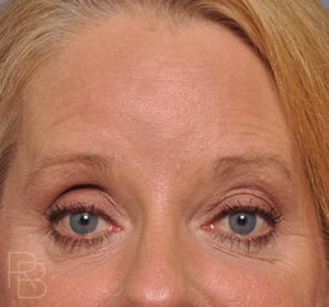 Dr. Brobst, Plano and McKinney, TX; After Endoscopic Browlift/Forehead Lift, Facial Resurfacing, and IPL ; Brobst Facial Plastic Surgery