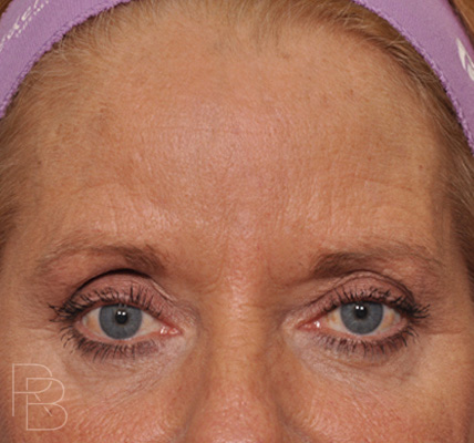 Dr. Brobst, Plano and McKinney, TX; Before Endoscopic Browlift/Forehead Lift, Facial Resurfacing, and IPL ; Brobst Facial Plastic Surgery
