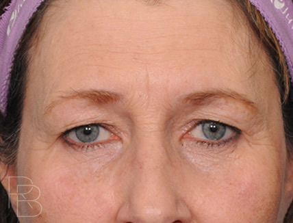 Dr. Brobst, Plano and McKinney, TX Before Upper and Lower Eyelid Blepharoplasty; Endoscopic Browlift/Forehead Lift ; Brobst Facial Plastic Surgery