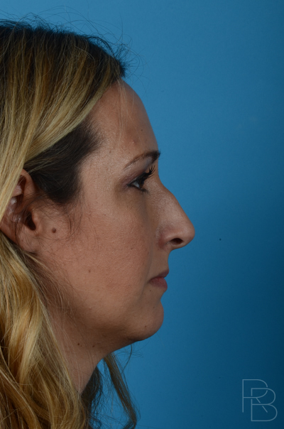 Dr. Brobst, Plano and McKinney, TX Before Rhinoplasty/Septoplasty; Neck Liposuction; Lesion/Mole Removal Brobst Facial Plastic Surgery