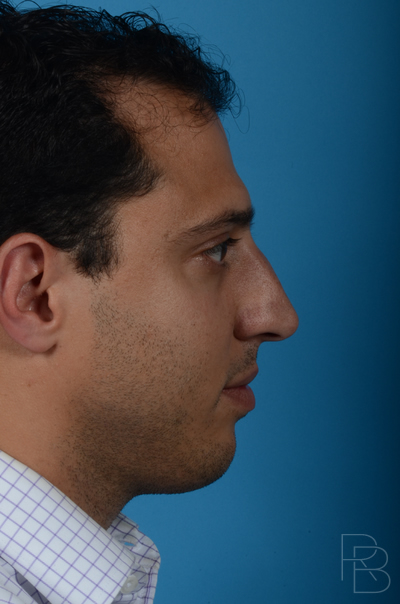 Dr. Brobst, Plano and McKinney, TX Before Rhinoplasty/Septoplasty Brobst Facial Plastic Surgery