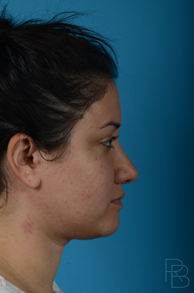 Dr. Brobst, Plano and McKinney, TX After Rhinoplasty/Septoplasty Brobst Facial Plastic Surgery