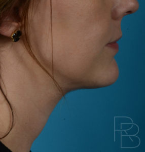 Dr. Brobst, Plano and McKinney, TX After Neck Liposuction - Brobst Facial Plastic Surgery