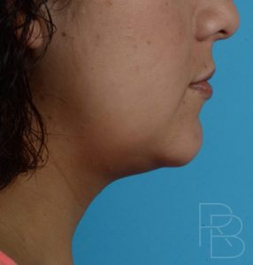 Dr. Brobst, Plano and McKinney, TX After 1 Treatment of Kybella