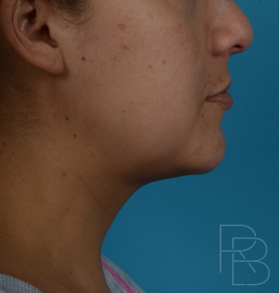 Dr. Brobst, Plano and McKinney, TX After 2 Treatments of Kybella