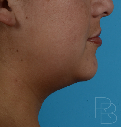 Dr. Brobst, Plano and McKinney, TX Before Treatment of Kybella
