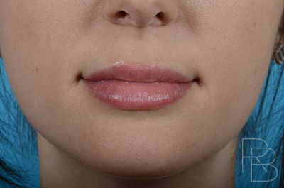 Dr. Brobst, Plano and McKinney, TX After Juvederm® Placement in lips - Brobst Facial Plastic Surgery