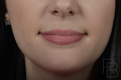 Dr. Brobst, Plano and McKinney, TX Before Juvederm® Placement in lips - Brobst Facial Plastic Surgery