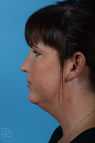 Dr. Brobst, Plano, Dallas and McKinney, TX Before Chin Augmentation / Neck Liposuction t Brobst Facial Plastic Surgery