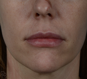 Dr. Brobst, Plano, Dallas and McKinney, TX After Lip Fillers Brobst Facial Plastic Surgery