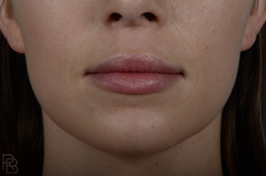 Dr. Brobst, Plano, Dallas and McKinney, TX Before Lip Fillers Brobst Facial Plastic Surgery