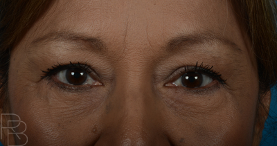 Dr. Brobst, Plano and McKinney, TX Before Lower Blepharoplasty Brobst Facial Plastic Surgery