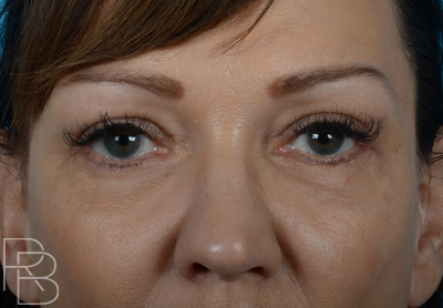 Dr. Brobst, Plano and McKinney, TX After Upper and Lower Blepharoplasty Brobst Facial Plastic Surgery