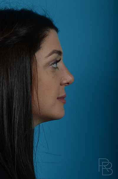 Dr. Brobst, Plano and McKinney, TX After Rhinoplasty Brobst Facial Plastic Surgery