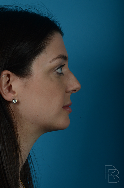 Dr. Brobst, Plano and McKinney, TX Before Rhinoplasty Brobst Facial Plastic Surgery