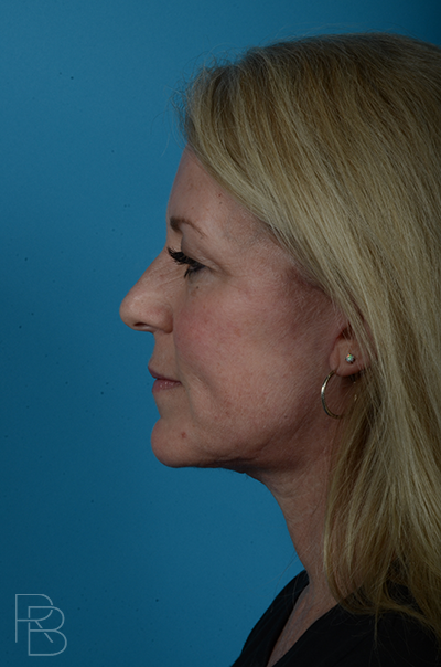 Dr. Brobst, Plano and McKinney, TX After Facelift Necklift Brobst Facial Plastic Surgery