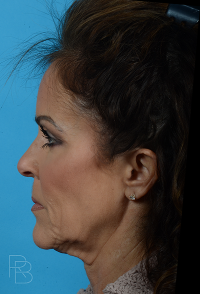 Dr. Brobst, Plano and McKinney, TX Before Facelift Necklift Brobst Facial Plastic Surgery